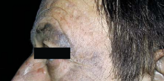 gray skin discoloration