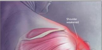 Axillary nerve dysfunction