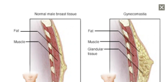 breast enlargement in men