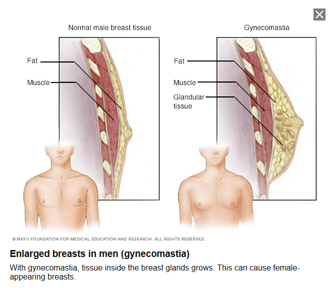 breast enlargement in men
