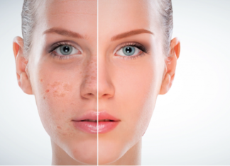 increased skin pigmentation skin hyperpigmentation
