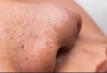 blackheads and their causes