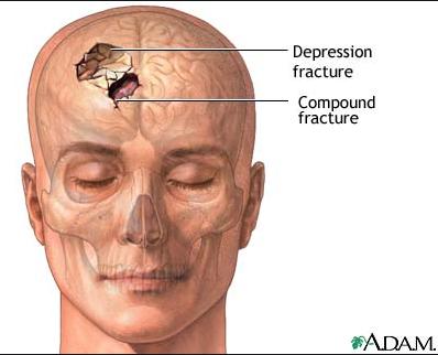 Skull fracture