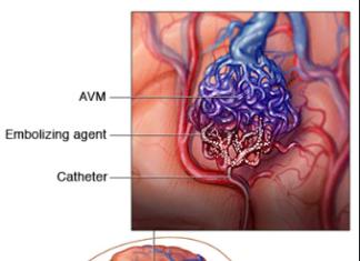 Endovascular embolization