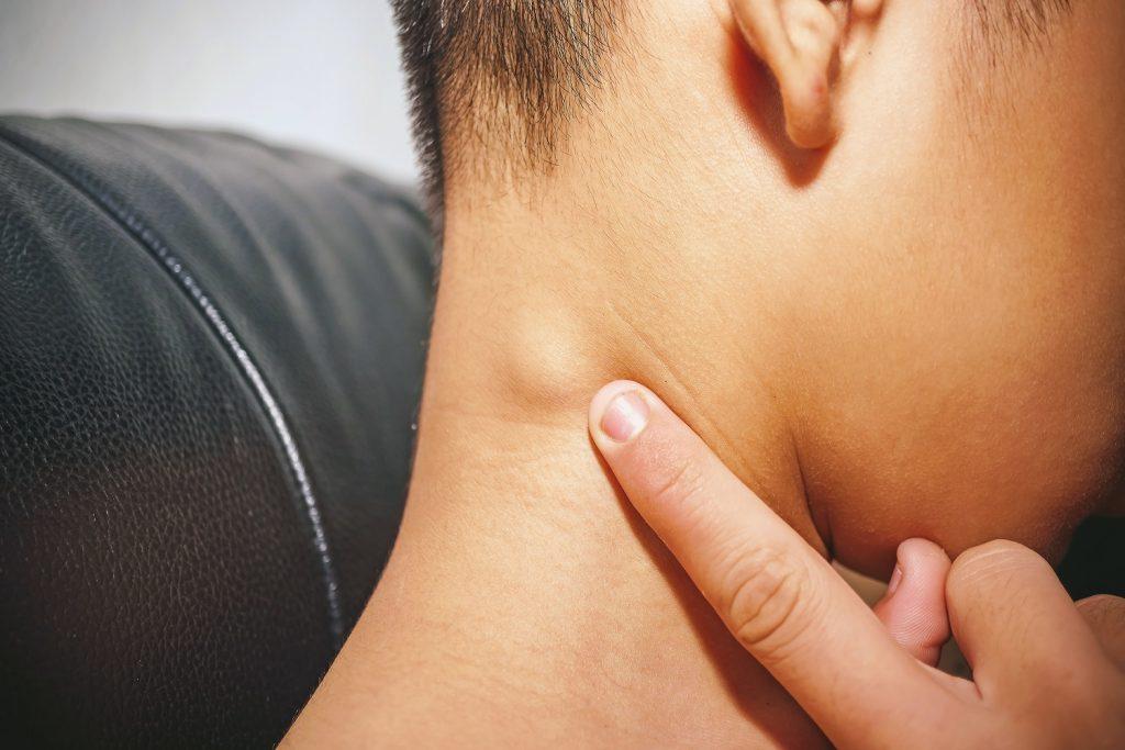 Lymph node swelling