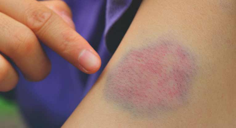 Causes of bruise itch