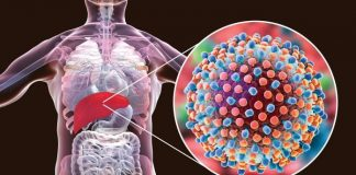 Hepatitis C and anemia