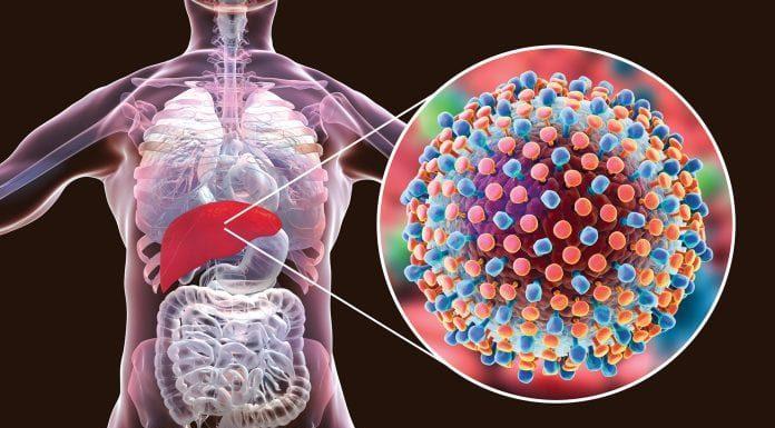 Hepatitis C and anemia