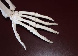 Juvenileidiopathic arthritis